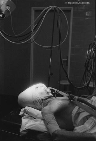 Ref Hôpital 14 – Patient après opération, Hôpital Cochin, Paris, France